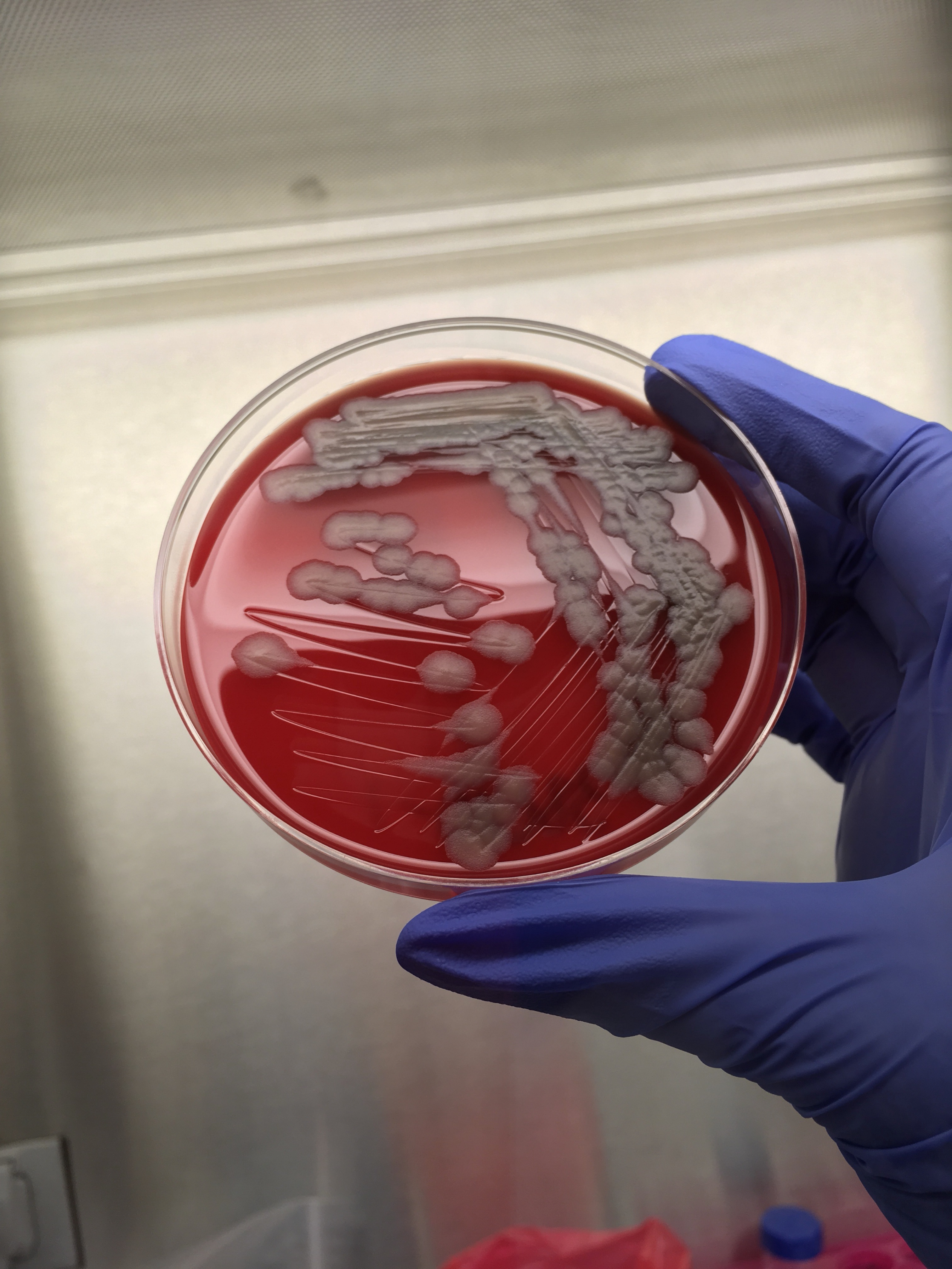 The Unanswered Questions About Anthrax